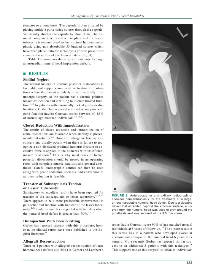 Management Of Posterior Glenohumeral Instability With Large Humeral H