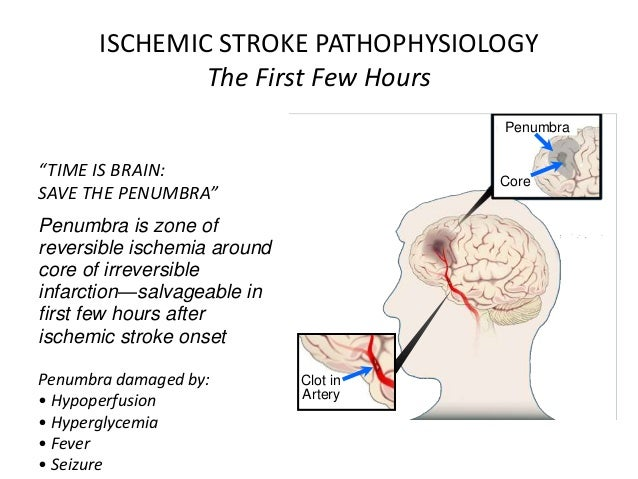 pathophysiology of stroke Ischemic stroke, clinically effective neuroprotective therapies are limitedbased on the accumulating evidence that ischemic cell death is a result of series of subsequent biochemical events, new concepts for.