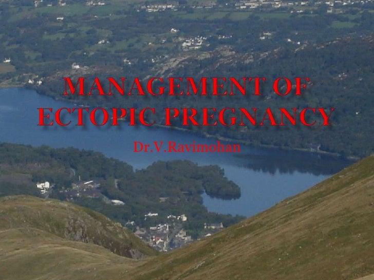 Management of ectopic pregnancy<br />Dr.V.Ravimohan<br />