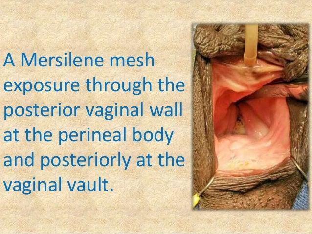 Vaginal wall texture