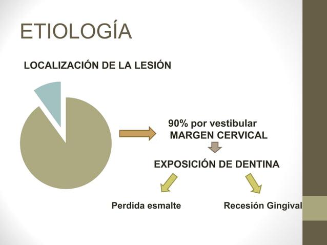 ETIOLOGÍALOCALIZACIÓN DE LA LESIÓN                          90% por vestibular                          MARGEN CERVICAL   ...