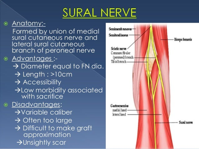 evaluation and management of facial nerve palsy by dr.aditya tiwari., Human Body