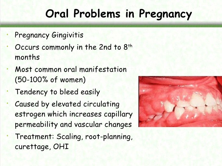 Manag of pregnant woman in dental clinic