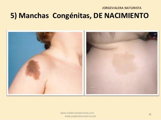 La pigmentación en la piel de por el hígado