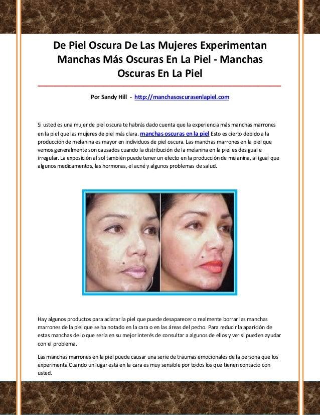 De Piel Oscura De Las Mujeres ExperimentanManchas Más Oscuras En La Piel - ManchasOscuras En La Piel______________________...