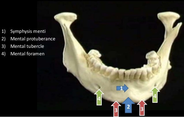 bony features of Mandible