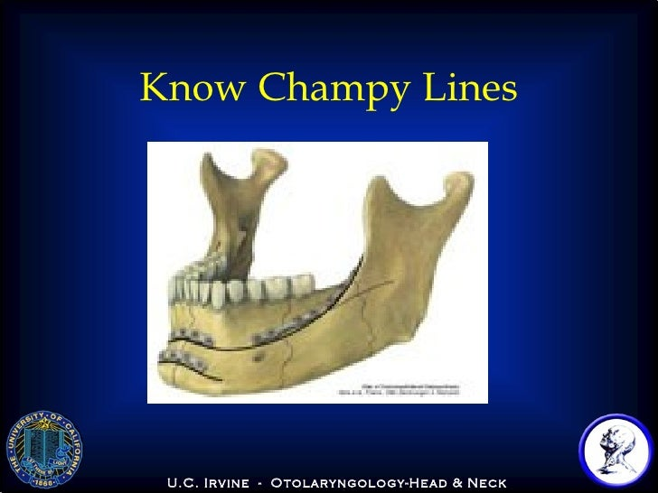 champy lines of osteosynthesis Mandibular angle fractures account for be treated according to champy's ideal lines of champy's ideal lines of osteosynthesis monocortical.