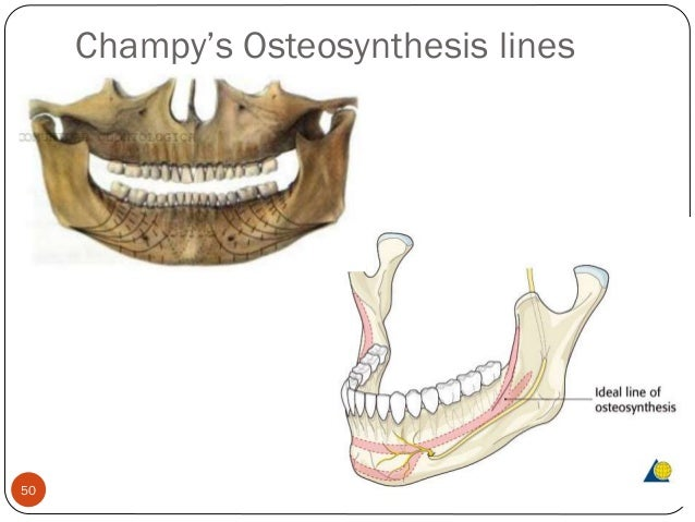 champy lines of osteosynthesis In group b, 50 patients treated with open reduction and internal fixation on champy's line of osteosynthesis under general anesthesia and the arch bar was.