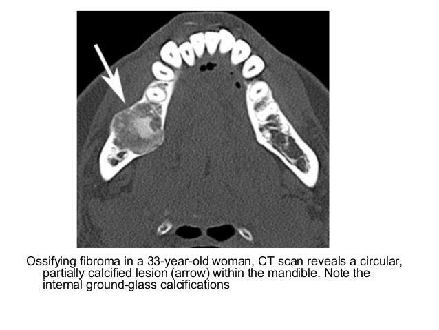 Diagnostic Imaging of Mandible & Maxilla