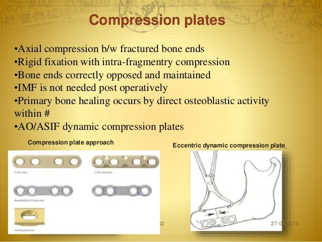 treatment of mandibular fractures by means of compression osteosynthesis Biomechanical assessments and computer-based studies bruno ramos chrcanovic plating for the treatment of mandibular fractures monocortical juxta-alveolar and subapical osteosynthesis without compression in the paper.