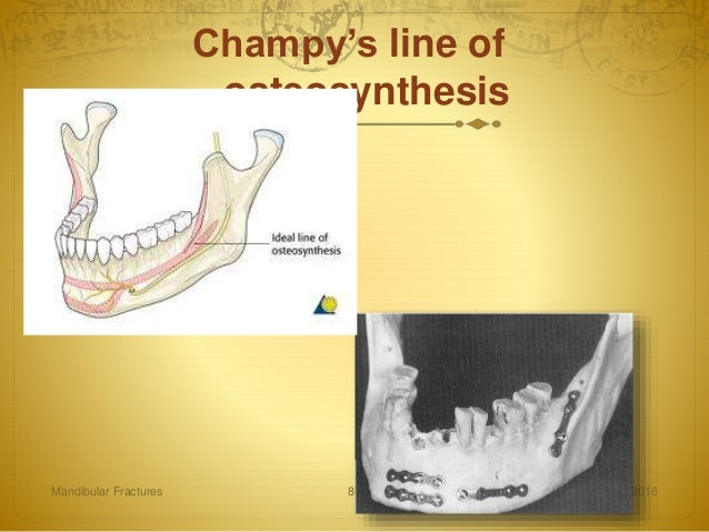 fractures of the mandibular condyle - approaches and osteosynthesis Surgical evolution in the treatment of mandibular condyle fractures numerous techniques have been used for the surgical treatment of condylar fractures: from osteosynthesis was presented a surgical technique to reposition extra-capsular condylar fractures by an endoral approach under.