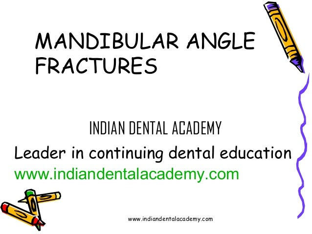 MANDIBULAR ANGLE FRACTURES INDIAN DENTAL ACADEMY Leader in continuing dental education www.indiandentalacademy.com www.ind...