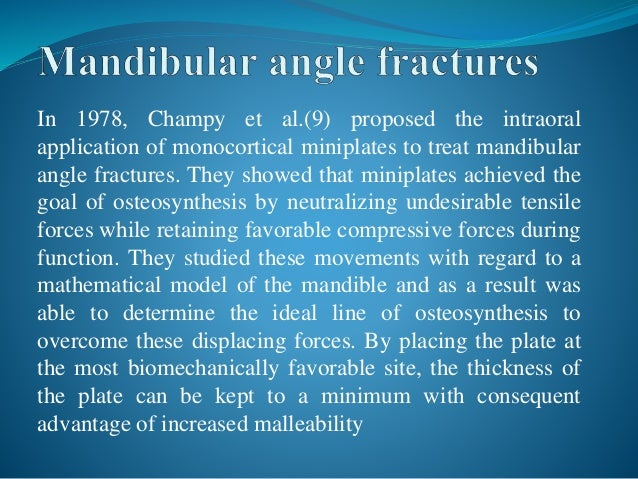 champys line of osteosynthesis Interventions for the management of mandibular fractures a haematoma is formed in the fracture line comparisons of interventions for the management of.