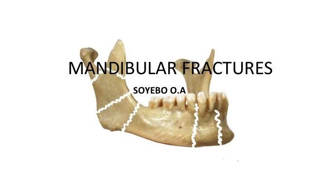 MANDIBULAR FRACTURES SOYEBO O.A
