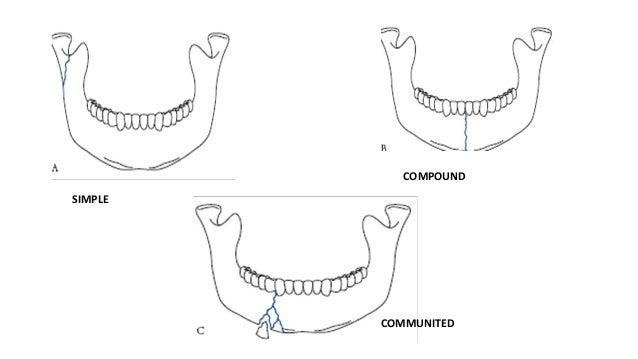 COMPOUND SIMPLE  COMMUNITED