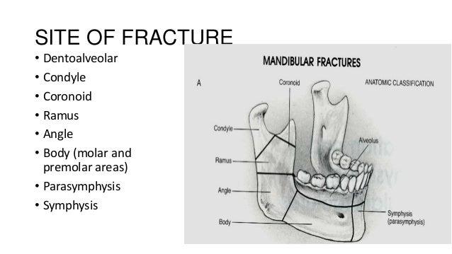 SITE OF FRACTURE • Dentoalveolar • Condyle • Coronoid • Ramus • Angle • Body (molar and premolar areas) • Parasymphysis • ...