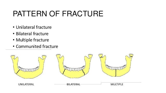 PATTERN OF FRACTURE • Unilateral fracture • Bilateral fracture • Multiple fracture • Communited fracture