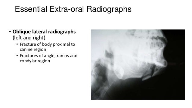 Essential Extra-oral Radiographs • Oblique lateral radiographs (left and right) • Fracture of body proximal to canine regi...