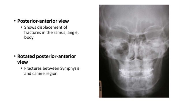 • Posterior-anterior view • Shows displacement of fractures in the ramus, angle, body  • Rotated posterior-anterior view •...