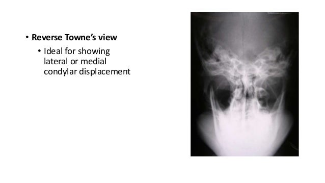 • Reverse Towne's view • Ideal for showing lateral or medial condylar displacement