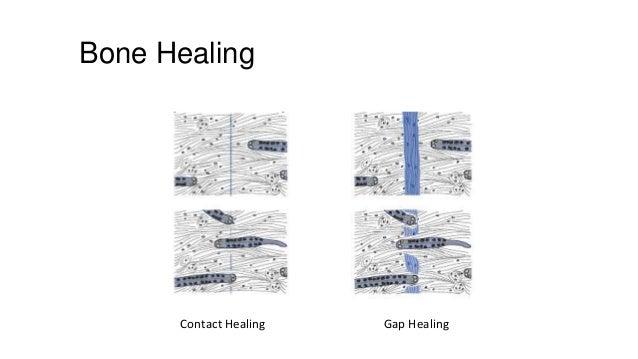 Bone Healing  Contact Healing  Gap Healing