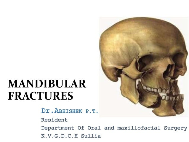 19: Panfacial and Naso-Orbito-Ethmoid (NOE) Fractures | Pocket ...