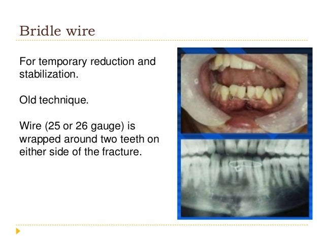 Wiring A Fractured Jaw - Wiring Diagram