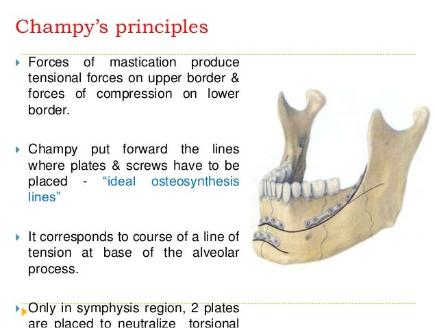 Treatment of mandibular fractures by means of compression osteosynthesis