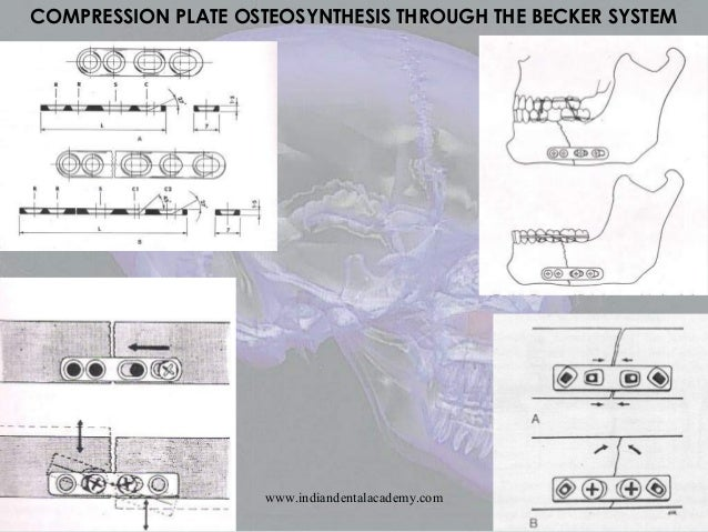 EP1452146A1 - Compression screw for osteosynthesis - Google Patents