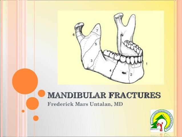 MANDIBULAR FRACTURESMANDIBULAR FRACTURES Frederick Mars Untalan, MD