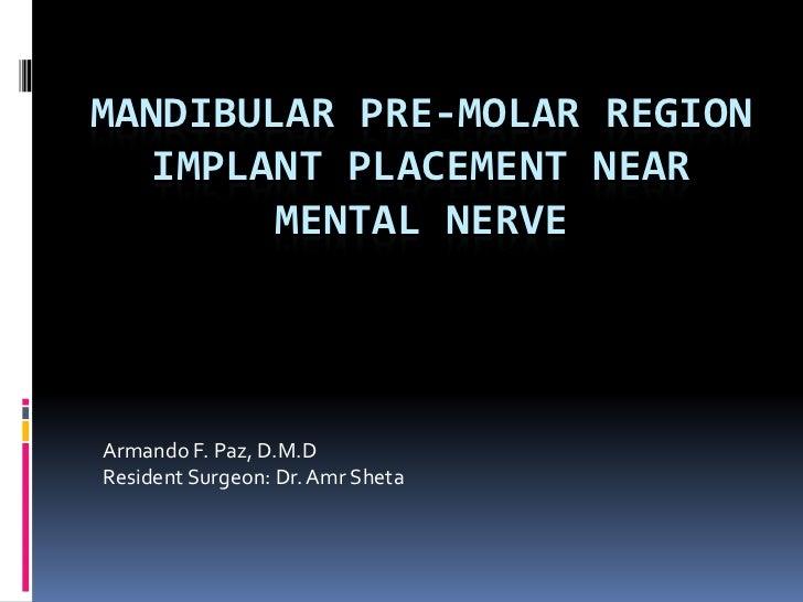 Mandibular Pre-Molar Region implant placement near mental nerve<br />Armando F. Paz, D.M.D<br />Resident Surgeon: Dr. AmrS...