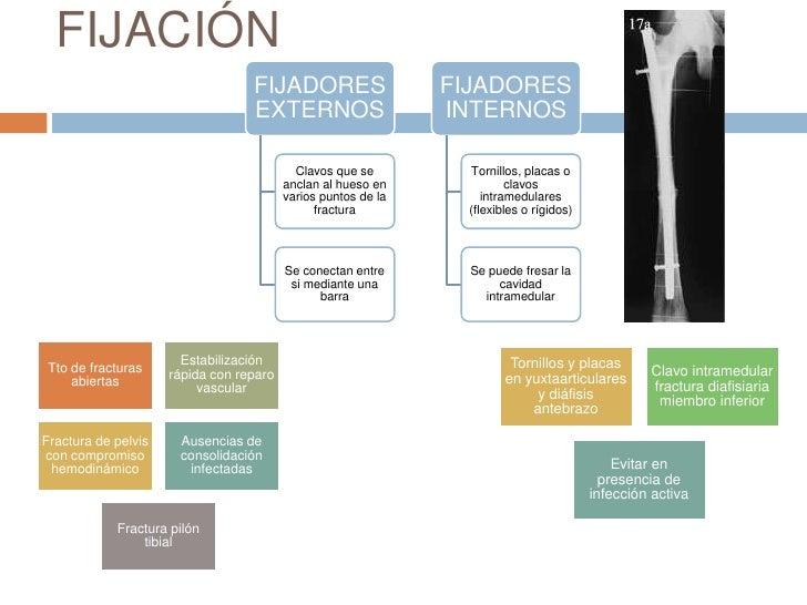 CIERRE DE FRACTURAS ABIERTAS <br /><ul><li> Cierre inmediato no esta recomendado