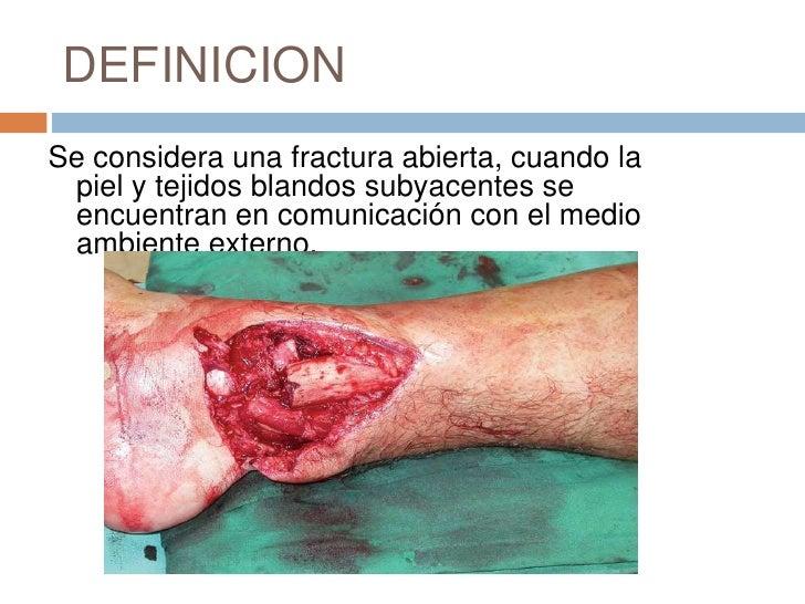 DEFINICION<br />Se considera una fractura abierta, cuando la piel y tejidos blandos subyacentes se encuentran en comunicac...
