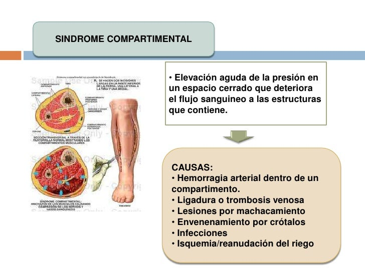 INJERTOS<br />Indicaciones:<br /><ul><li>Defectos óseos tras traumatismos