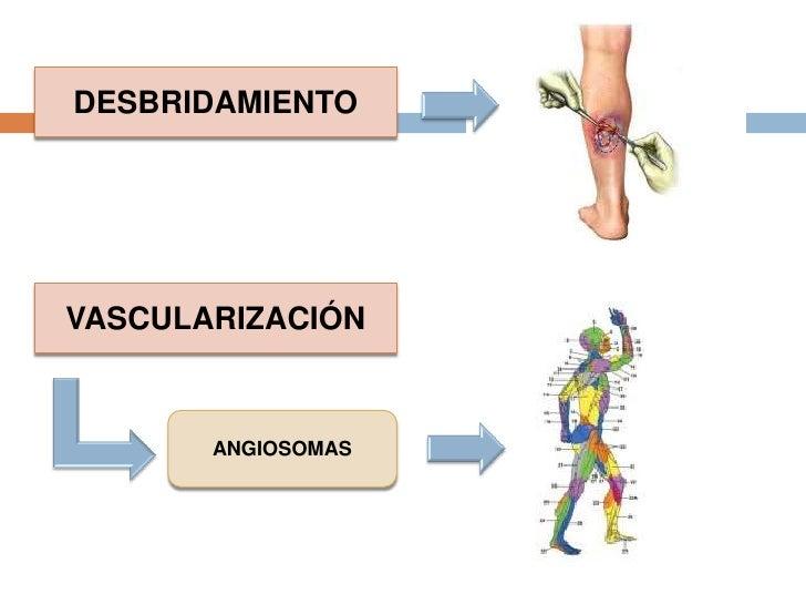 Alternativas a aminoglucosidos :  aztreonam, las cefalosporinas de tercera generación.