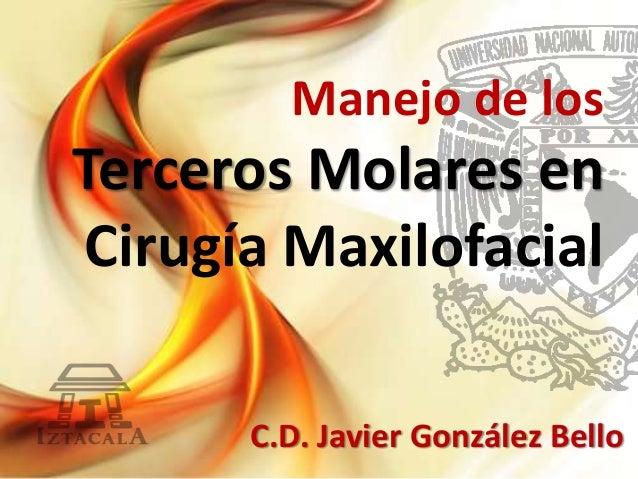 Manejo de los Terceros Molares en Cirugía Maxilofacial C.D. Javier González Bello