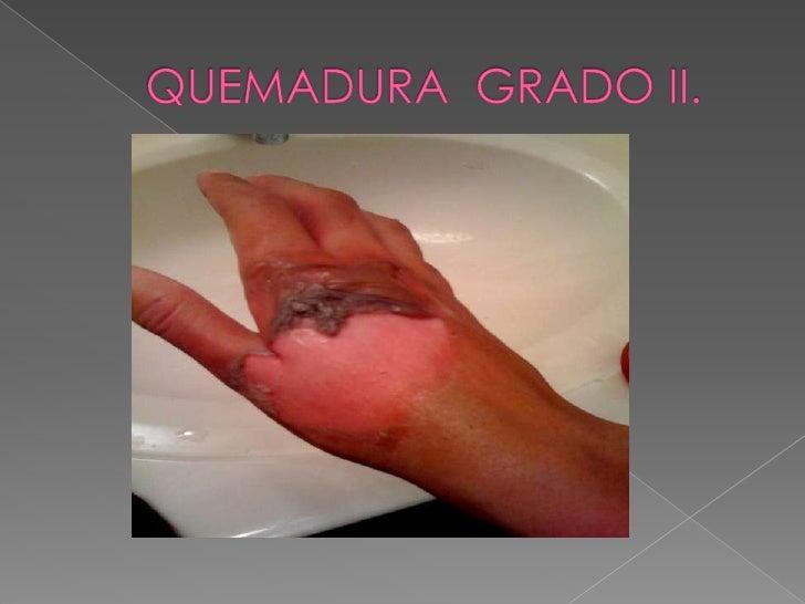QUEMADURAS <br />FACTOR PROFUNDIDAD <br />GRADO  I.   Compromete  la  epidermis.<br />GRADO  II.  Grados variables de Derm...