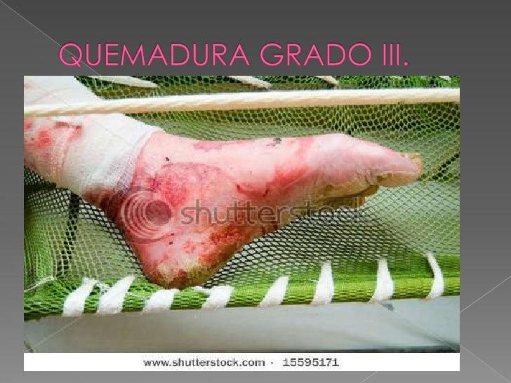 GRADOS DE QUEMADURAS <br />