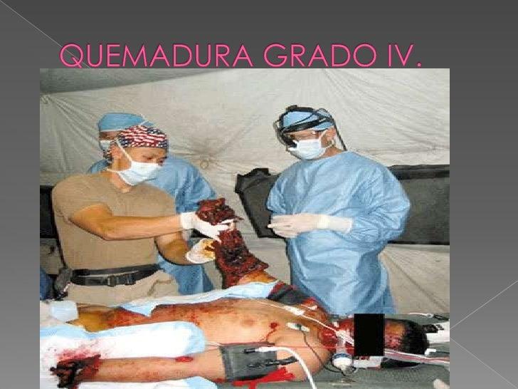 QUEMADURAS GRADO I.<br />