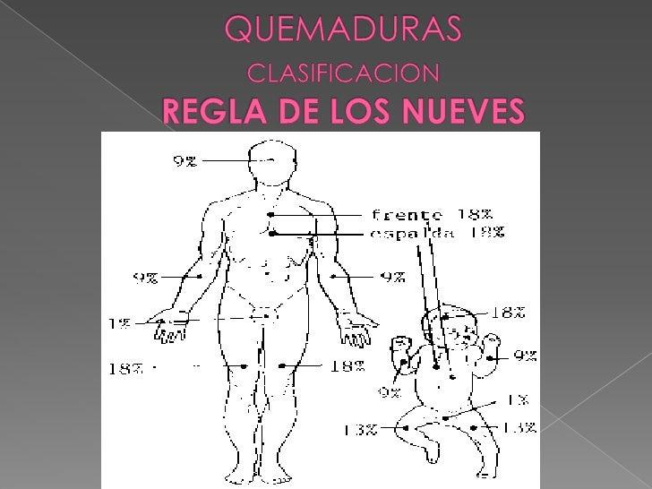 QUEMADURA GRADO III.<br />