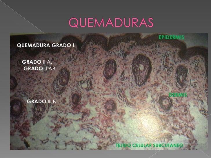 DIAGNOSTICO: Clínico, laringoscopia, Rx de tórax,  Gases arteriales.
