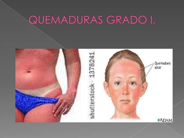 Traqueo bronquitis  y   Bronconeumonía; Nosocomiales.</li></li></ul><li>QUEMADURAS <br />EPIDERMIS<br />QUEMADURA GRADO I....