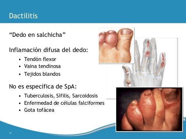 La bilirrubina es subida atopichesky la dermatitis a