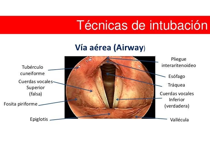 Manejo de vía aérea y ventilación