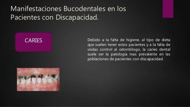 Manifestaciones Bucodentales en los Pacientes con Discapacidad. Debido a la falta de higiene, al tipo de dieta que suelen ...