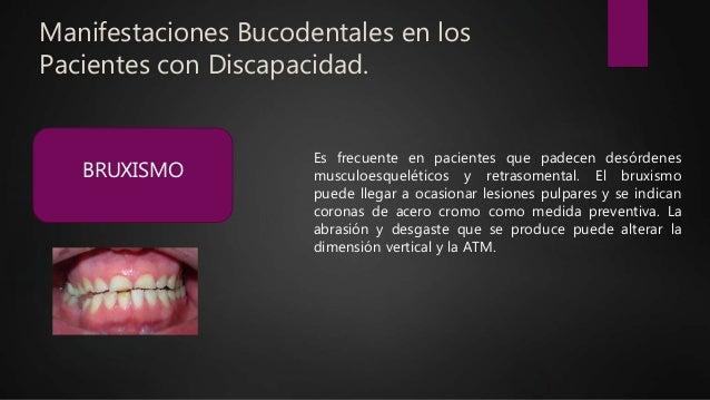 Manifestaciones Bucodentales en los Pacientes con Discapacidad. BRUXISMO Es frecuente en pacientes que padecen desórdenes ...