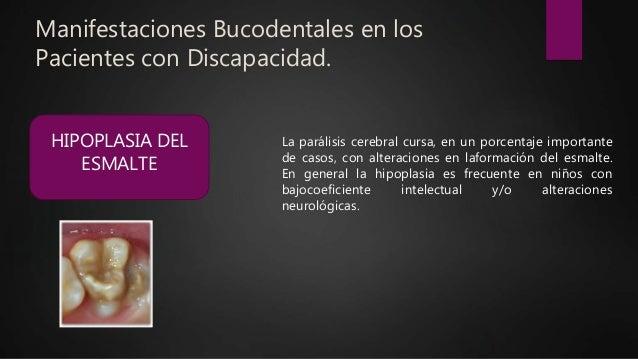 Manifestaciones Bucodentales en los Pacientes con Discapacidad. HIPOPLASIA DEL ESMALTE La parálisis cerebral cursa, en un ...