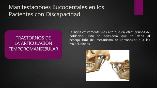 Manifestaciones Bucodentales en los Pacientes con Discapacidad. TRASTORNOS DE LA ARTICULACIÒN TEMPOROMANDIBULAR Es signifi...