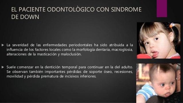 EL PACIENTE ODONTOLÒGICO CON SINDROME DE DOWN  La severidad de las enfermedades periodontales ha sido atribuida a la infl...