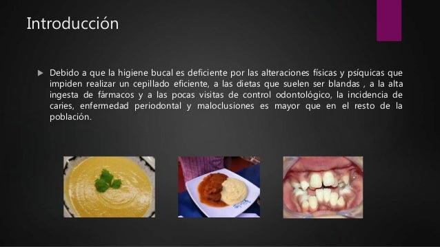 Introducción  Debido a que la higiene bucal es deficiente por las alteraciones físicas y psíquicas que impiden realizar u...